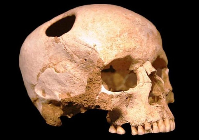 Pourquoi nos ancêtres ont percé des trous dans les crânes les uns des autres ?